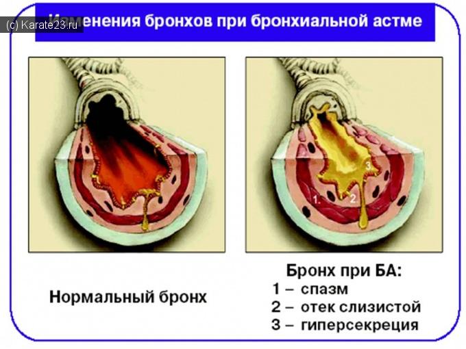 Рецепты лечения стенокардии: